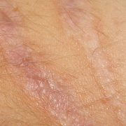 New breakthrough will make scars and wrinkles a thing of the past