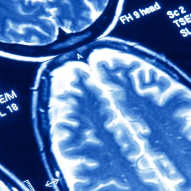 Scientists have grown a brain in a jar