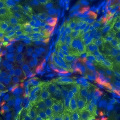 Scientists are creating a detailed map of all 35 trillion cells in the human body