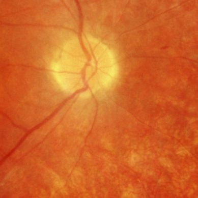 Scientists turn to gene editing to reverse blindness in humans
