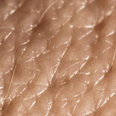 Scientists have 3D printed functioning artificial human skin