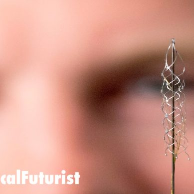 Revolutionary injectable brain implant restores mobility in paralysed patients